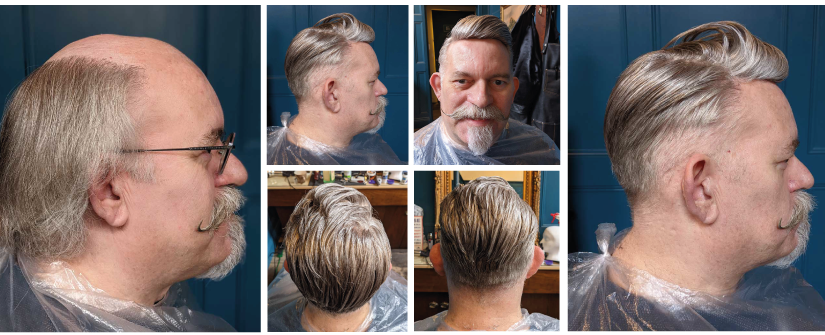 """""""A little on the top please"""" – New Dandy Hair Replacement Service Launched"""